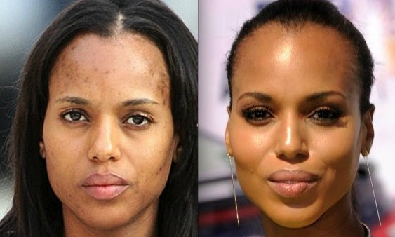 kerry washington no makeup1 Dont let Acne rule your life!