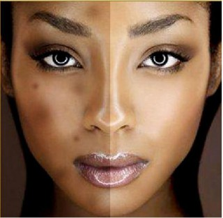 What Causes Black Spots On The Face? | EXTRASHADE